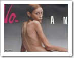 art.anorexic.ap